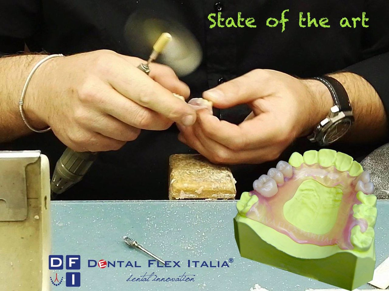 Dental-Flex-Italia_Rifinitura